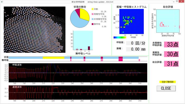 小児用肺機能分析装置